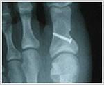 x ray foot