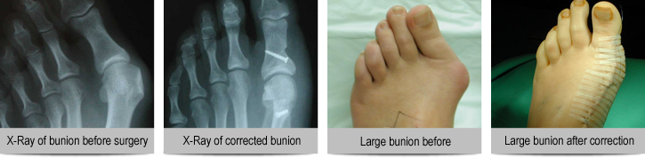 before-and-after-shots-of-bunions-and-xrays