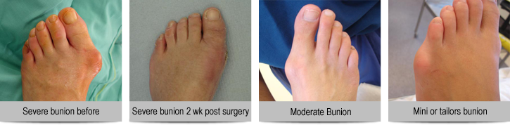 Images-of-severe,-moderate-bunions-and-repairs