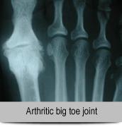 Arthritic big toe joint
