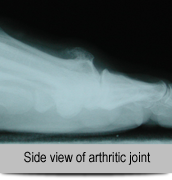 Side-view-of-arthritic-joint