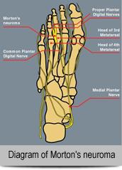 Diagram-of-Morton\'s-neuroma