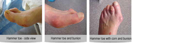 Hammer-toe-and-bunions